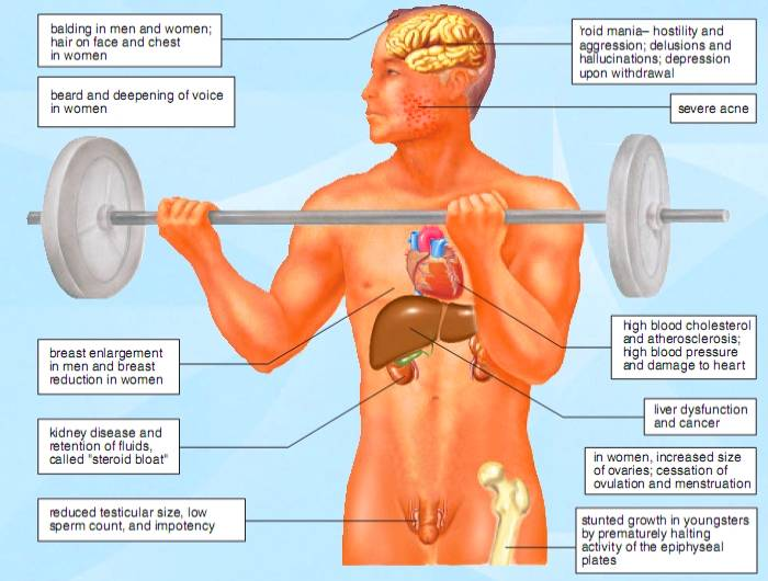 Illustration of possible steroid side effects