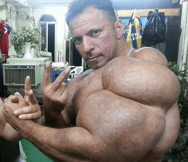 Bodybuilder that Used Synthol