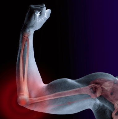 Xray of arm showing joing muscles