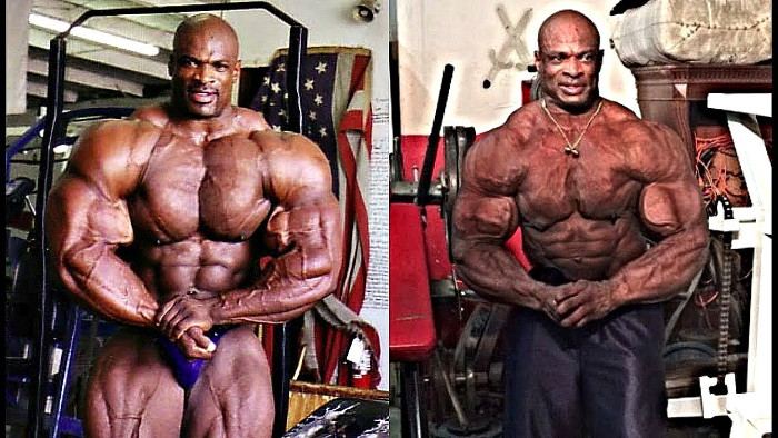 Ronnie Coleman Before and After Steroids