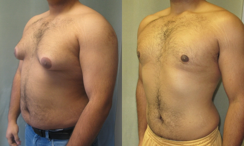 Picture of Man Suffering from Pseudogynecomastia