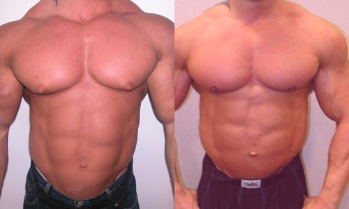 Bodybuilder With Gynecomastia
